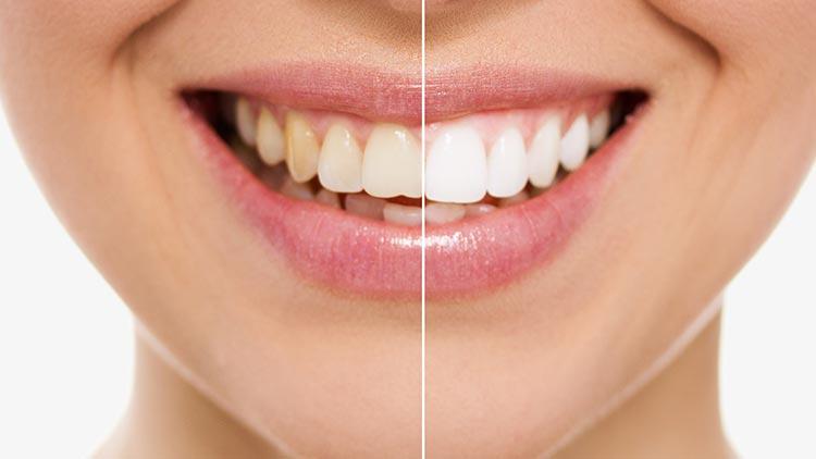 Ein lachender Mund, bei dem die rechte Hälfte der Zähne strahlend weiß ist, verdeutlicht, wie individuelle Ästhetik der Zähne das Aussehen verändert.