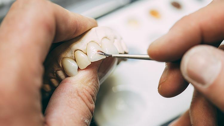 In Großaufnahme fertigen zwei weibliche Hände eine Zahnprothese im Labor der Praxis zahn-B in Strausberg an.