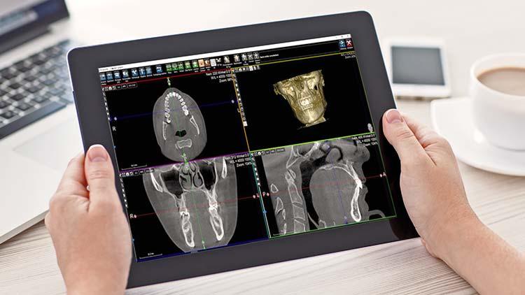 Zwei Hände halten ein Tablet, auf dem vier hochauflösende Bilder aus dem digitalen Volumentomografen (DVT) einen Kiefer abbilden.